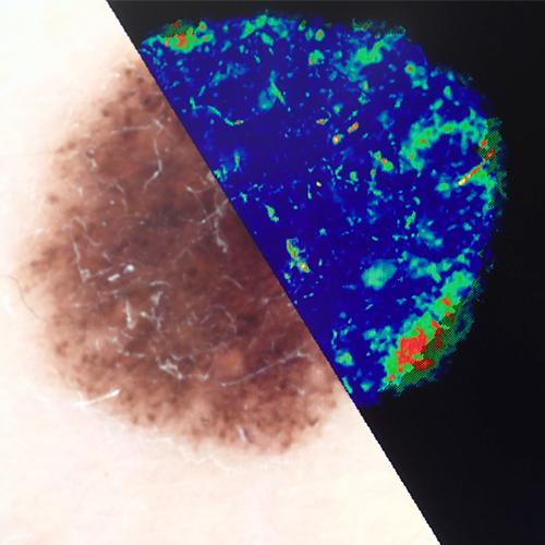 Docteur Pierre Delvoye - Dermatologue à Nandrin - Dermatoscopie numérisée